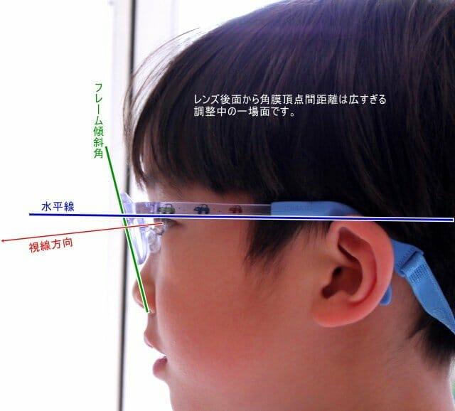 弱視等治療眼鏡(0歳~)