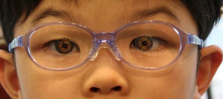 【実施例】こどもメガネの品質(弱視等治療用眼鏡)