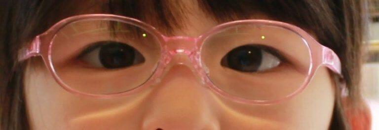 調節性内斜視、眼鏡装着後