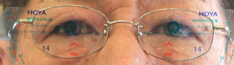【実施例】遠近両用眼鏡(累進屈折力眼鏡)遠視性乱視