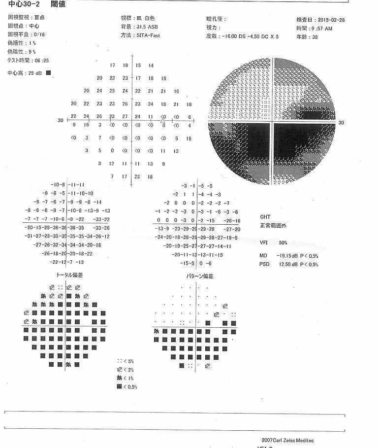 緑内障視野検査表
