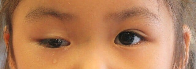 眼部撮影観察、右眼に複合斜視