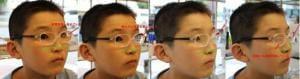 遠視レンズの持つ危険性