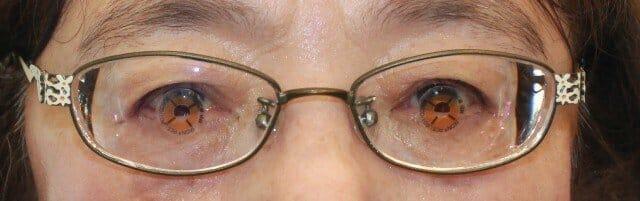 強度近視と斜視