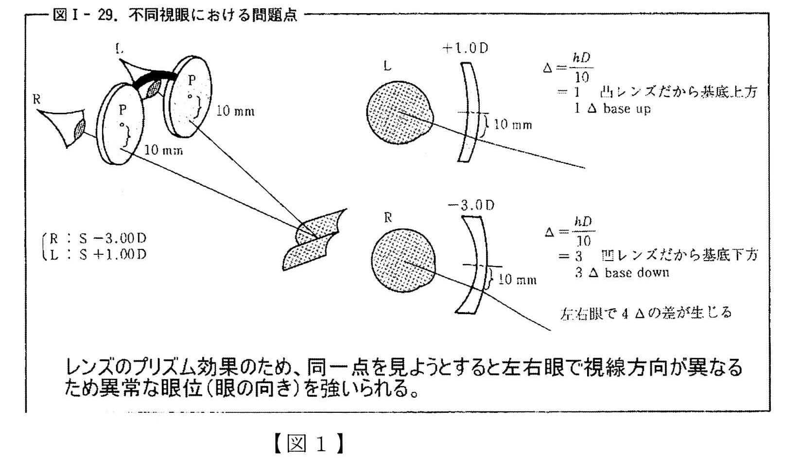 自他覚視軸測定装置使用の実際