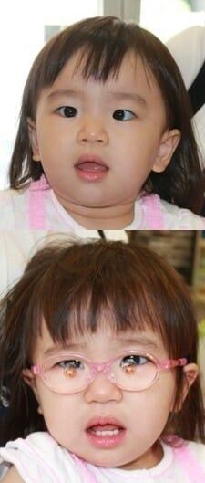 節性内斜視、眼鏡装着直後の眼位変化