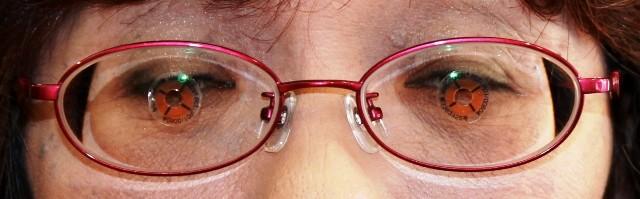 【実施例】強度近視性乱視 片眼内斜視と上下斜視、よく見えるように