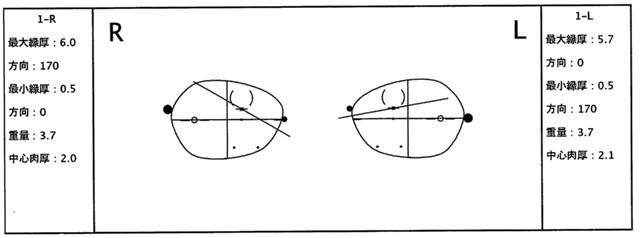 【実施例】強度の複雑斜視