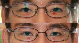 【実施例】眼震盪 定期点検1週後で眼位変化に対応(無料保証)