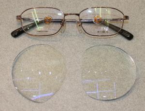 【実施例】強度の内斜視 遠視性乱視と近視性乱視