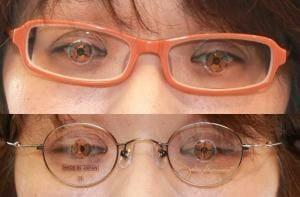 コンタクトレンズ も 眼鏡も ぼやけてよく見えない