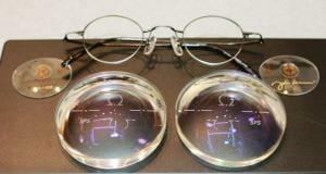 高度近視性乱視 複合斜視