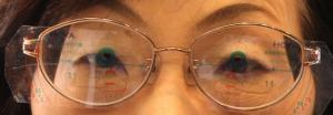 【実施例】強度近視に依る網脈絡膜萎縮症 運転免許視力