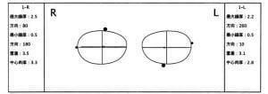 レンズ図面1