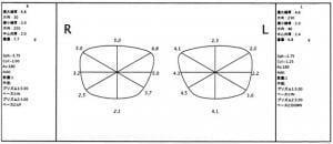 【実施例】不同視 近視性乱視と強い複合斜視