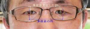 複視 交通事故による後遺症 強い内斜視