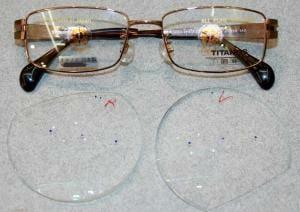【実施例190130】遠視性乱視 複合斜視(外斜と上下)