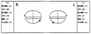 乱視軸図(直乱視)