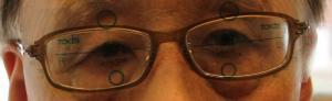 上下斜視 15.00⊿ 眼鏡装着直後