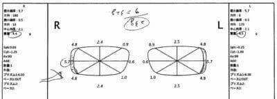 【190828実施例】内斜視 12.00⊿
