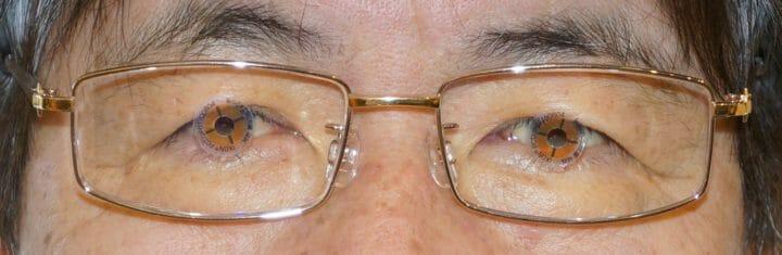 目とレンズ中心の一致確認