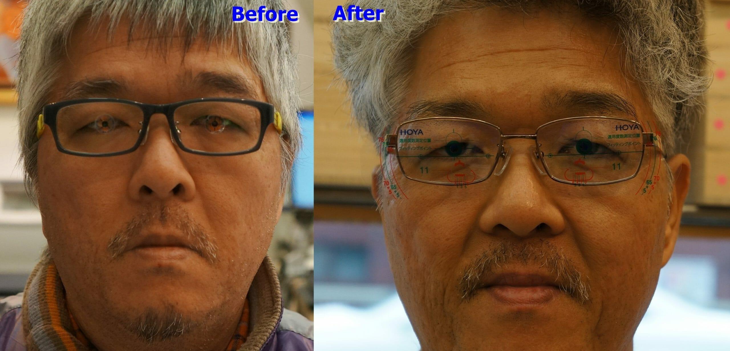 表情の変化 Before & After